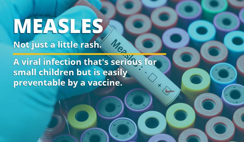 measles info